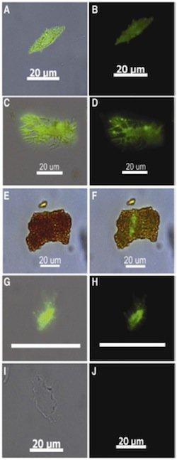 Ab-labeled osteocytes