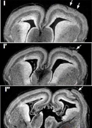 brain-folding