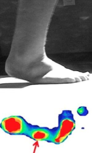 floppy-foot