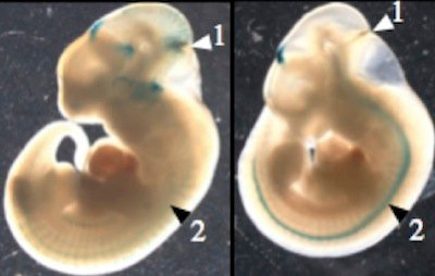 chimpanzee embryo at 12 weeks - 400×254