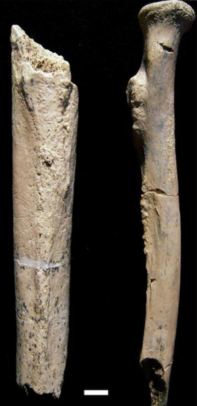 nutcracker femur