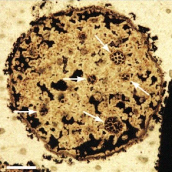Megasphaera cell nests