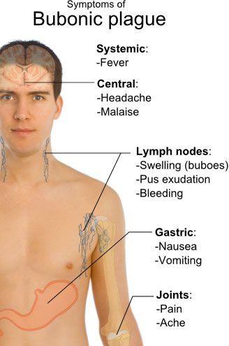 Symptoms of Bubonic Plague