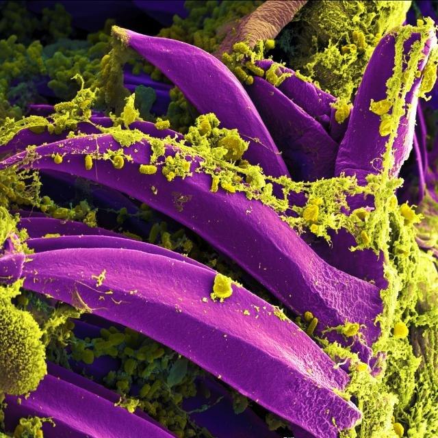 Scanning electron micrograph of Yersinia pestis