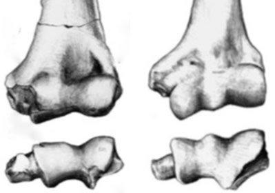 Upper Arm Bones