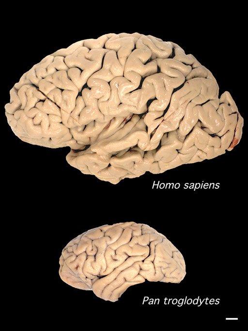 Brain Comparison