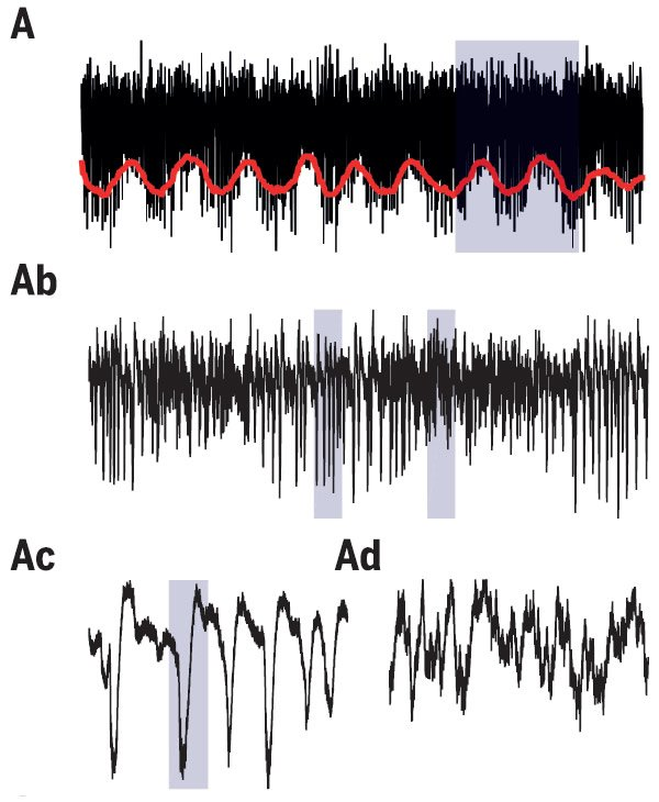 Sleeping Dragon's Brain Activity