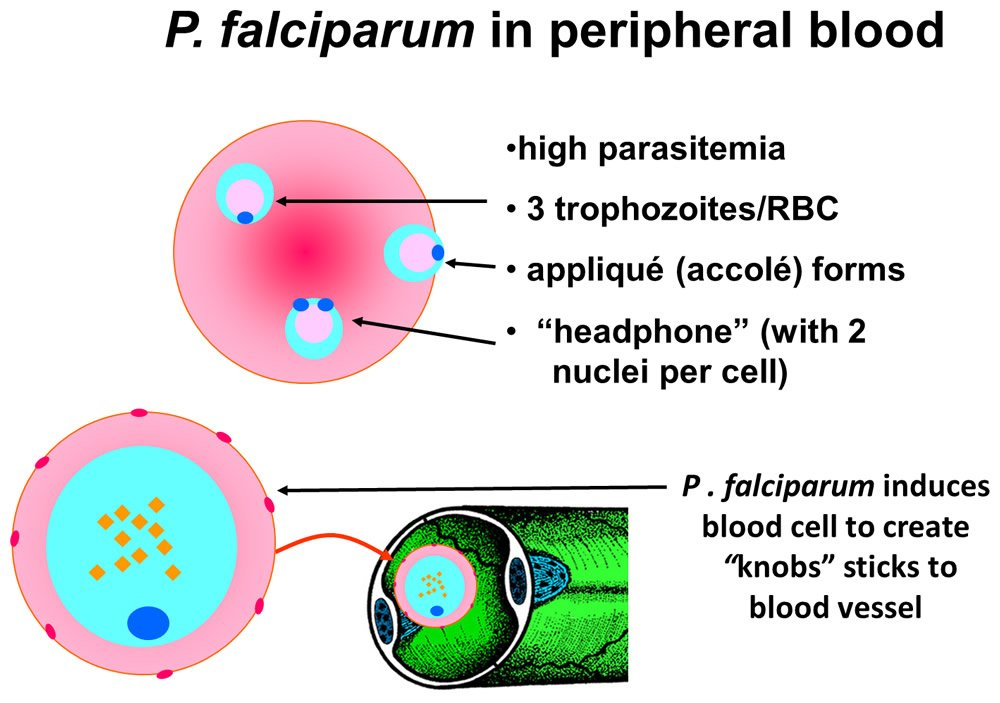 P. falciparum in peripheral blood