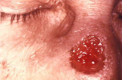 Gumma of Nose