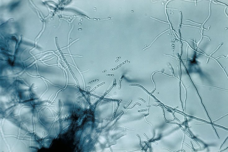 Streptomyces sp 01