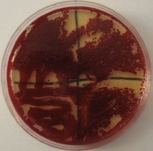 Serratia Figure 9