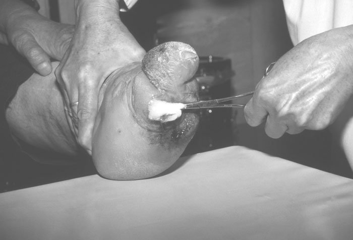 Cleaning a leprous foot