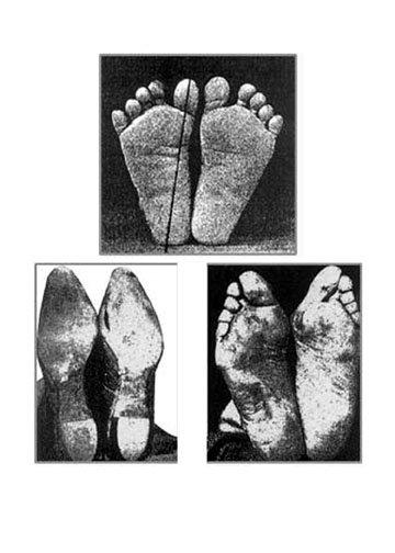 Hoffman Foot Photos