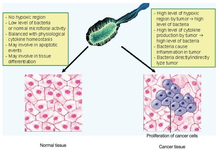 Normal tissue compared with cancerous tissue