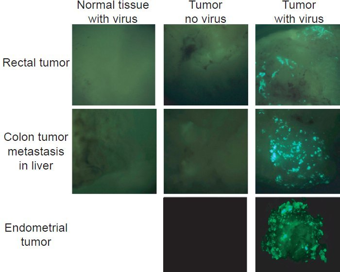 Normal tissue with viruses, tumors, and tumors with viruses