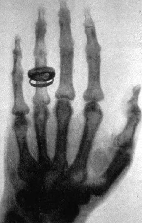 X-ray of Professor Albert von Kölliker