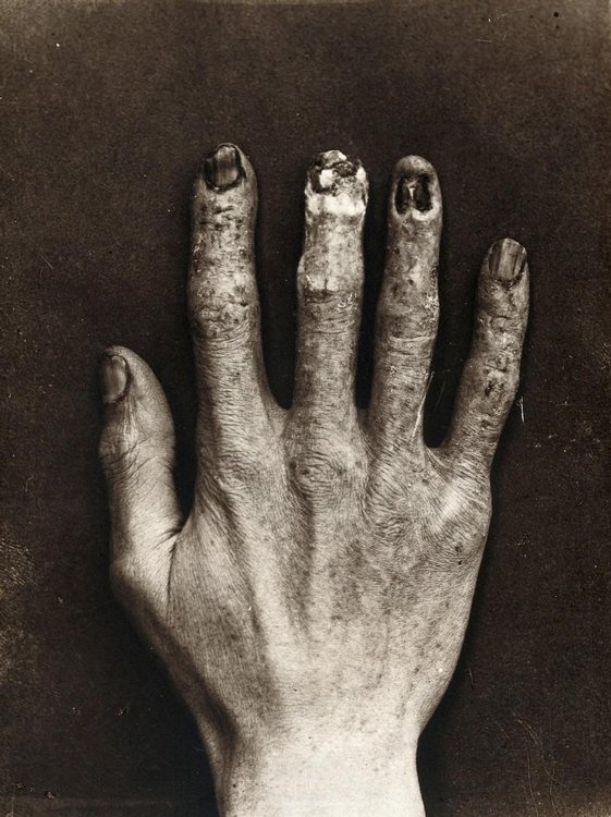 Hand of Clarence Dally