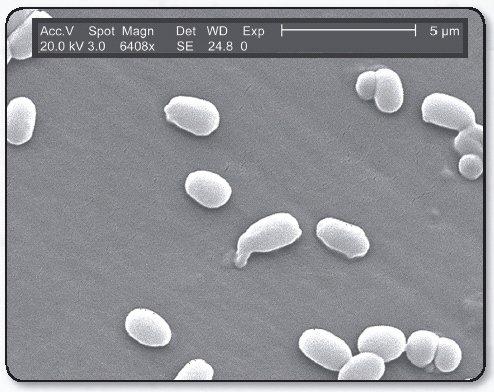 Bacillis anthracis