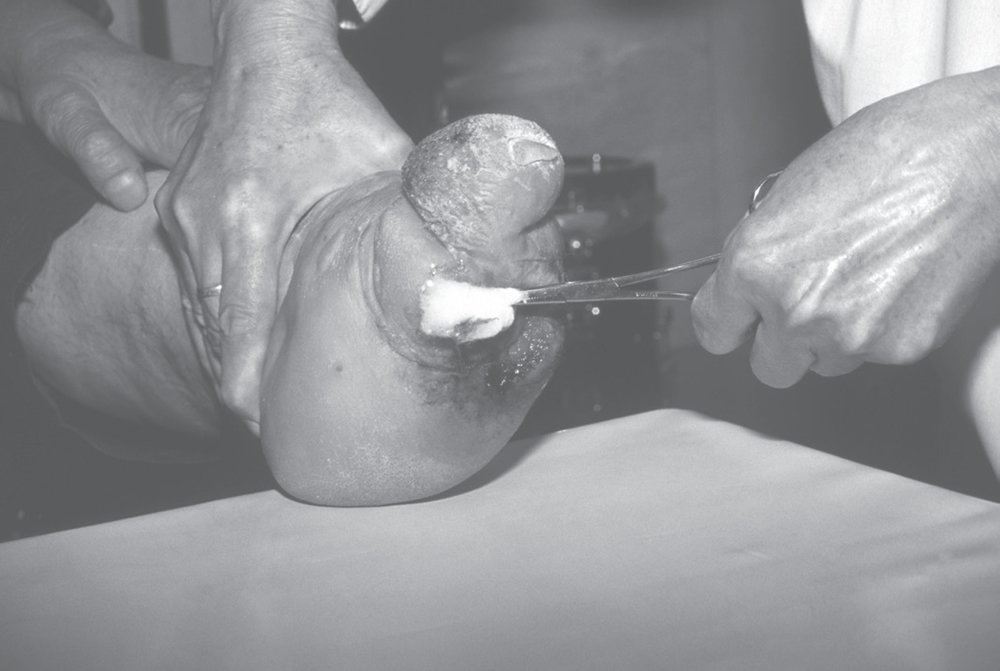 Cleaning the Deformed Foot of a Person Suffering from Leprosy