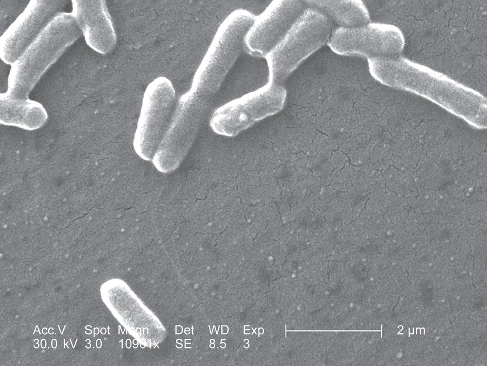 Scanning Electron Micrograph of E. coli