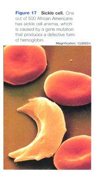 Sickel Cell