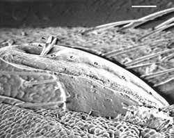 Flattened Papillae