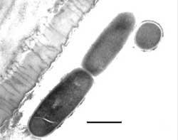 Dividing Bacteria