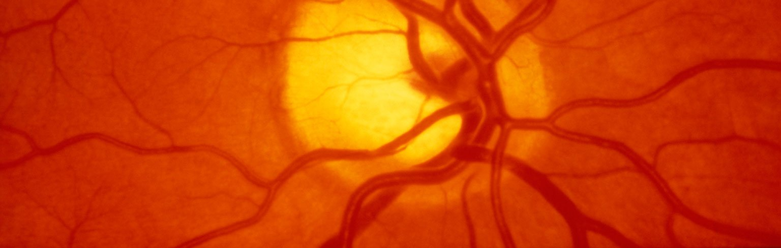 Retinal Blood Vessels—Hiding in Plain Sight
