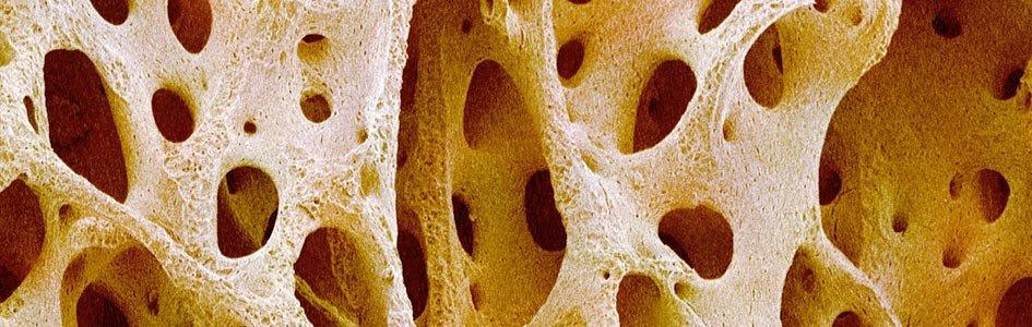 Solid Sponge