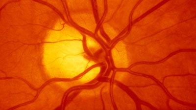 Retinal Blood Vessels—Hiding in Plain Sight