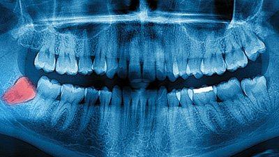 Are Wisdom Teeth Evidence for Evolution?